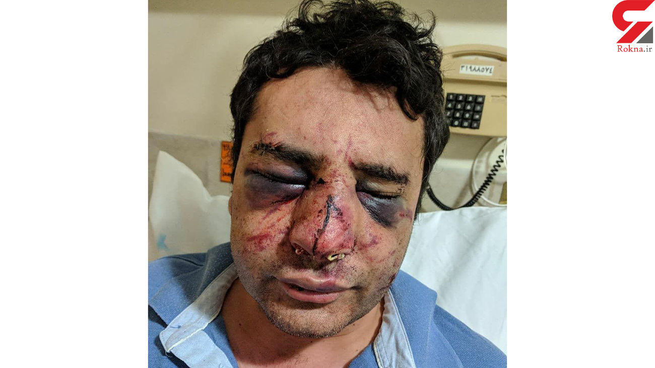 کور شدن دکتر پیرانشهری در حمله بستگان فوتی کرونایی+عکس