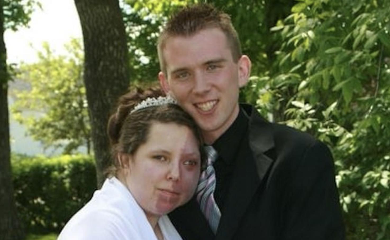 ماجرای ازدواج یک زن با چهره ای عجیب +عکس