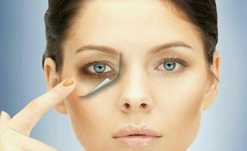 کاهش گودی و سیاهی زیر چشم را با ترک ۶ عادت