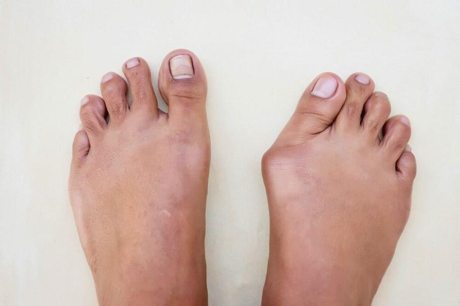 بونیون یا انحراف شست پا چگونه درمان می شود؟