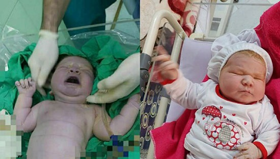 تولد نوزاد ۶کیلویی در اردکان