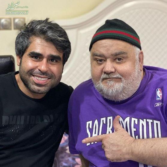 اضافه وزن باورنکردنی «اکبر عبدی» +عکس