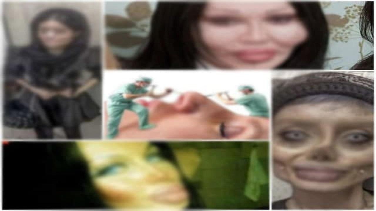 تب و تاب تغییر هویت دختران با تیغ جراحی زیبایی!