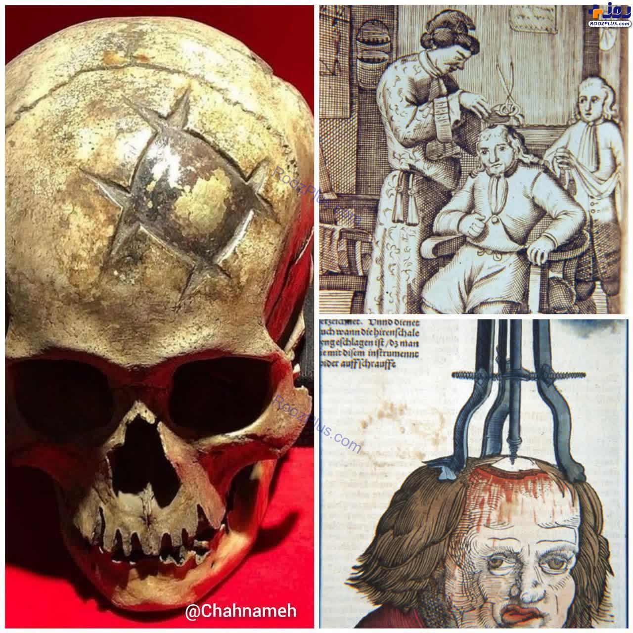 جراحی حیرت انگیز جمجمه در ۱۶۰۰ سال پیش +عکس