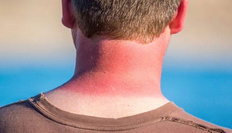 همه چیز درباره آفتاب سوختگی
