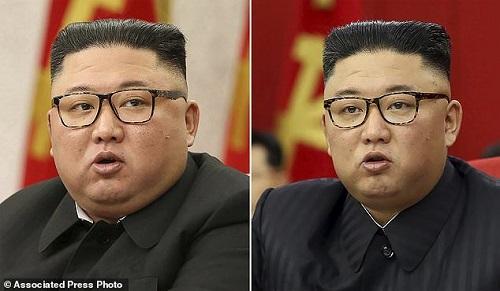 تصویر جنجالی رهبر کرهشمالی؛ لاغرتر شده است