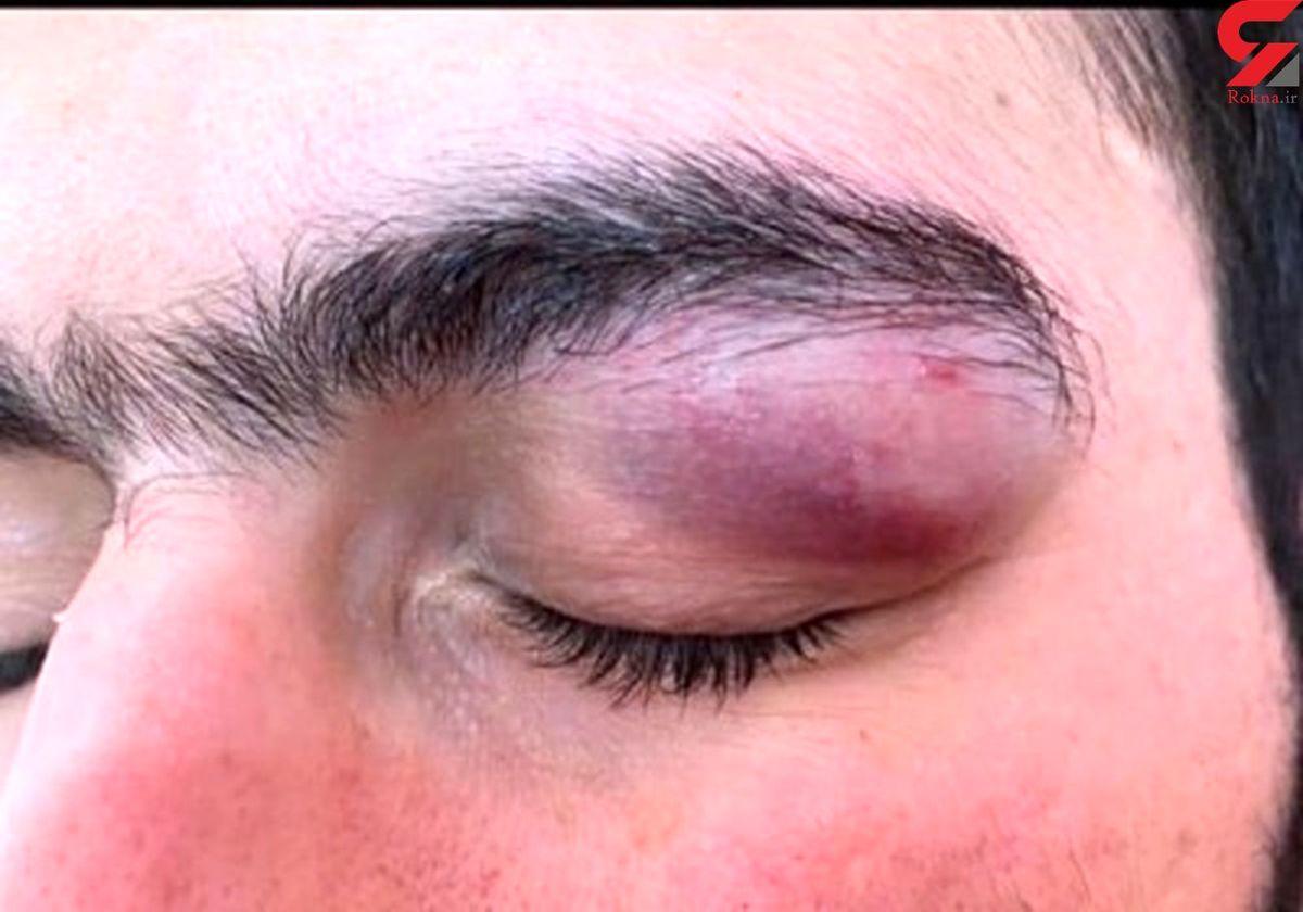 حمله همراه بیمار کرونایی با چاقو به چشمان یک پزشک+ عکس