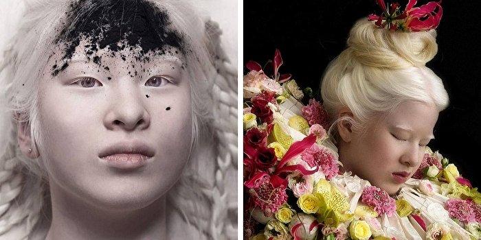 دختر زالی که در نوزادی رها شده بود مدل نشریه ووگ شد