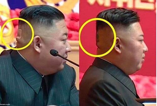 زخم پشت سر کیم جونگ اون جنجالی شد