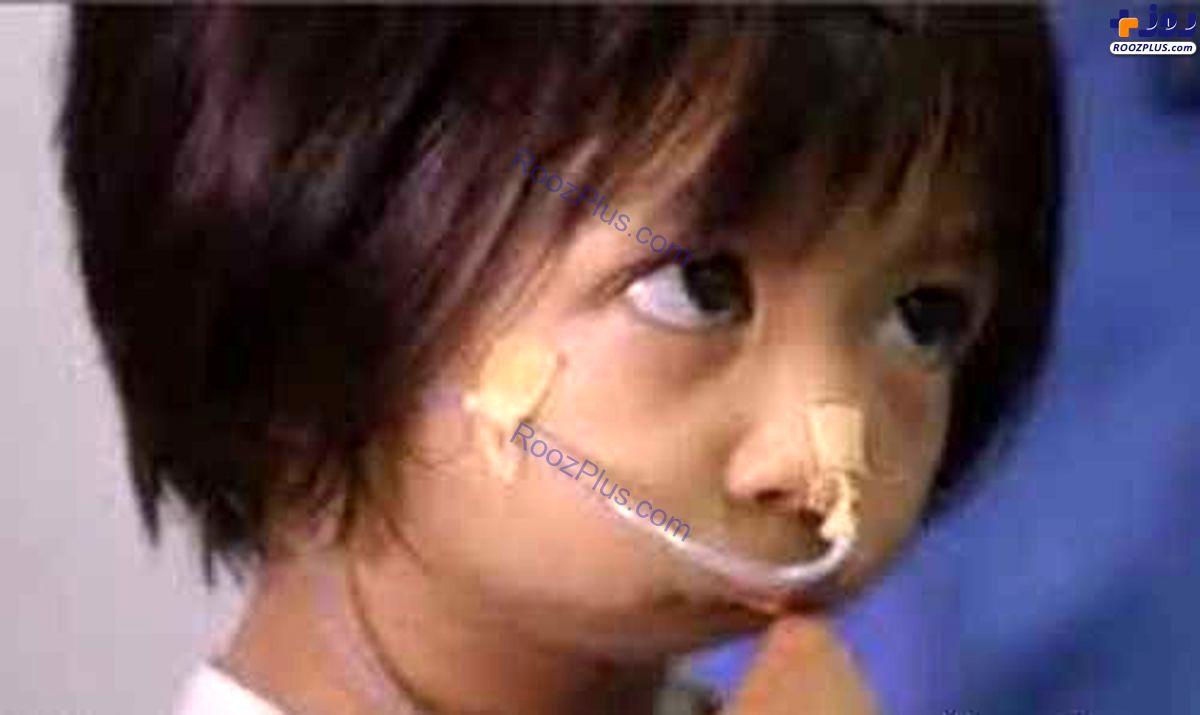 ساختن دهان برای دختر بچه بدون دهان +عکس
