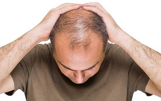 پیشگیری از ریزش مو با ۷ خوراکی موثر