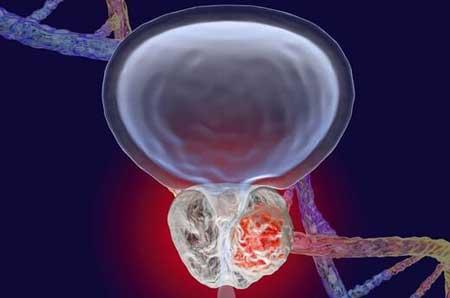 این سرطان در مردان به سادگی قابل درمان است