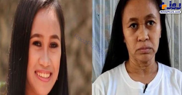 بیماری عجیبی که دختر جوان را به زنی ۵۰ ساله شبیه کرد