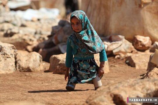 سوریه, اردوگاه پناهندگان ادلب: دختر سوری که در جنگ دو پاهایش را از دست داده و پدرش با قوطی های غذا برایش پای مصنوعی درست کرده است