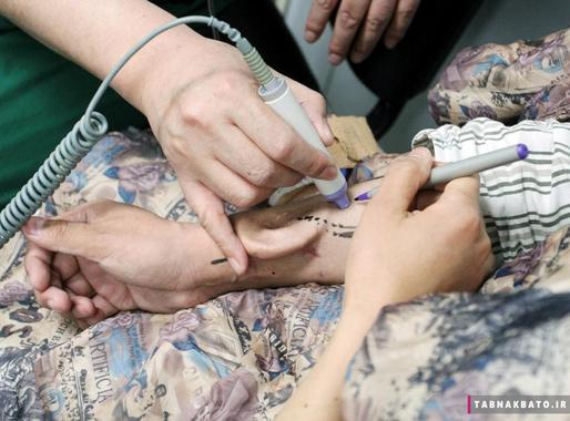 پیوند گوش پرورش داده شدهی روی دست یک بیمار به سر وی در یک عمل جراحی پیوند در بیمارستان دانشگاه ژیآن جیاوتونگ در شهر ژیآن استان شانشی (شانسکی) چین. این بیمار گوش خود را در یک سانحه از دست داده بود.